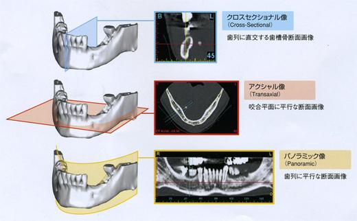 インプラント 3D画像