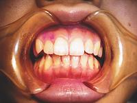 2.歯面をなめらかに