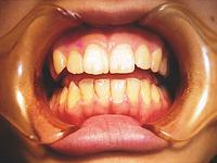 3.歯垢を吸着除去